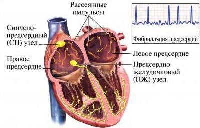 хаотичные импульсы при аритмии
