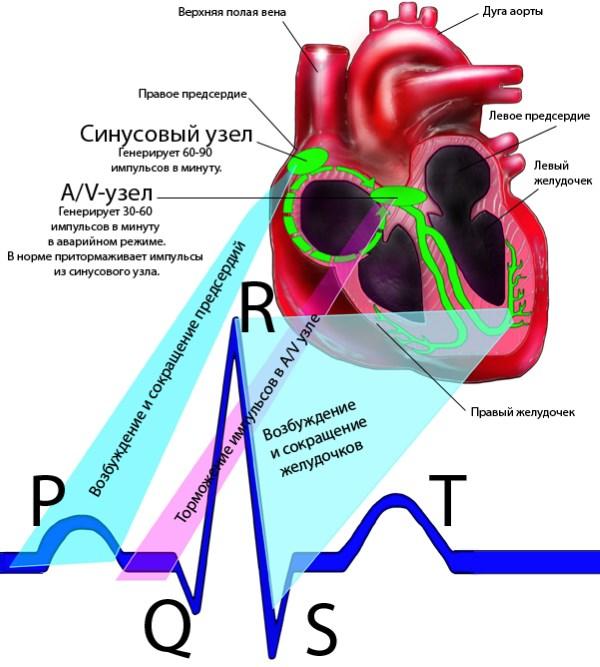 импульс на кардиограмме