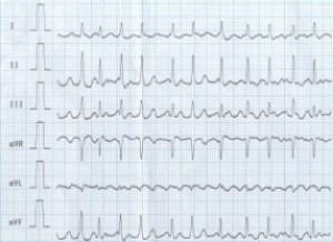 кардиограмма мерцательной аритмии