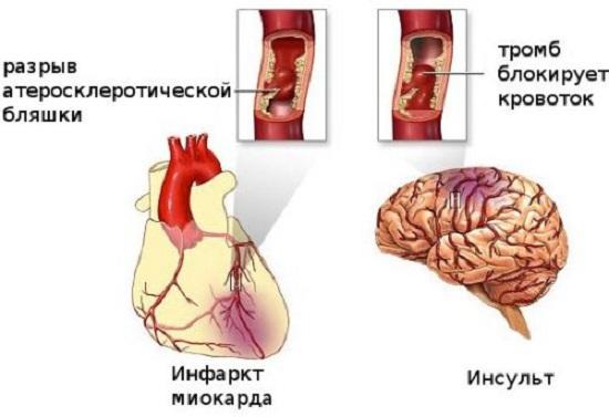инфаркт и и нсульт