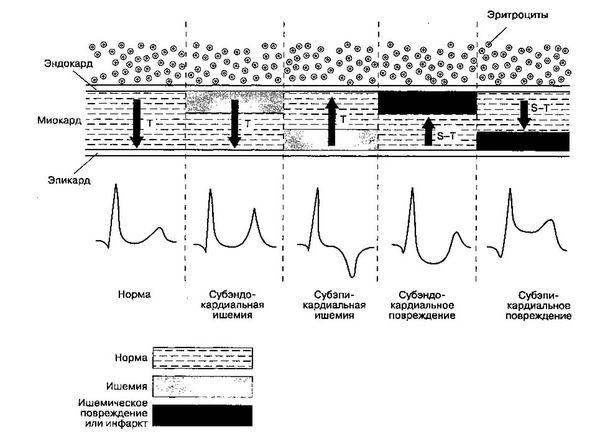 эшемия миокарда на экг