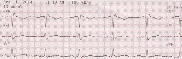 экг при кардиомиопатии