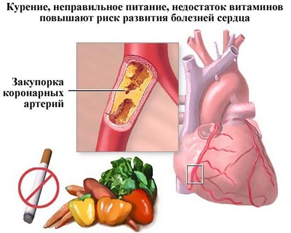 факторы болезней сердца