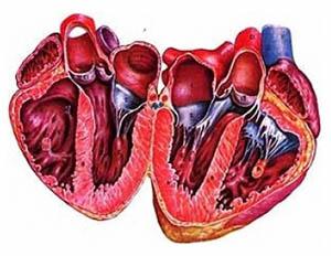 кардиомиопатия сердца