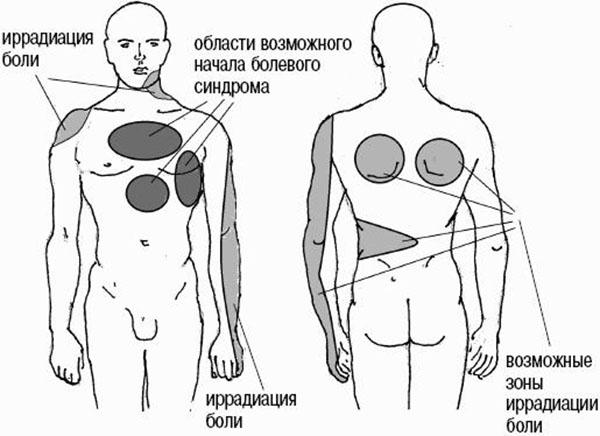 области иррадиации боли