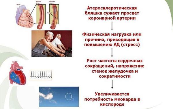 стенокардия