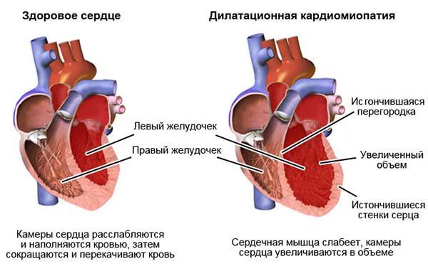 признаки кардиомиопатии