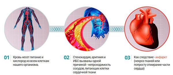 причина болезней сердца