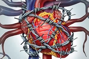 резкая боль в сердце