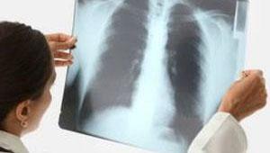 рентгеновский снимок грудной клетки