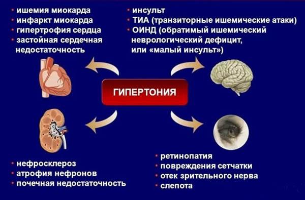 факторы риска гипертонии