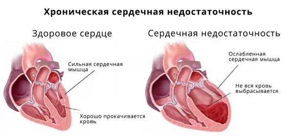 cимптомы хронической сердечной недостаточности