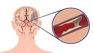 поражение артерий мозга