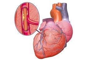 Как болит сердце симптомы. Заболевания сердца лечение