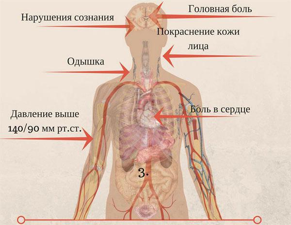 симптомы давления