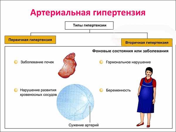 типы гипертензии