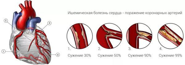 артерии при ишемии