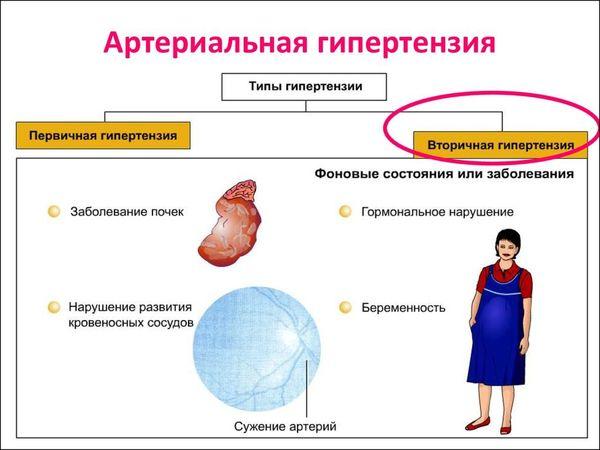 типы гипертонии