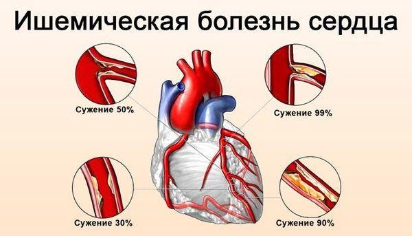 ишемическая болезнь