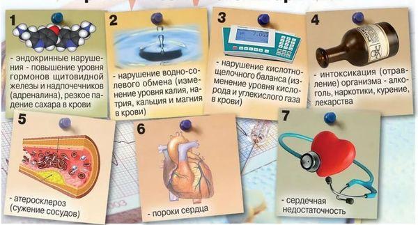 причины аритмии