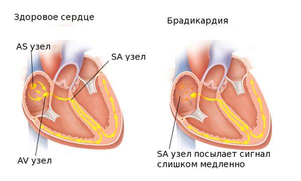 брадикардия