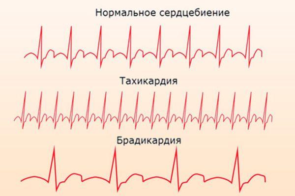 тахикардия и брадикардия на ЭКГ