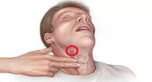 массаж каротидного синуса