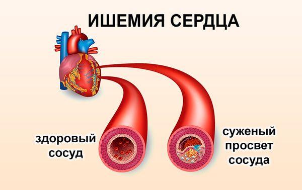 сосуды при ишемии