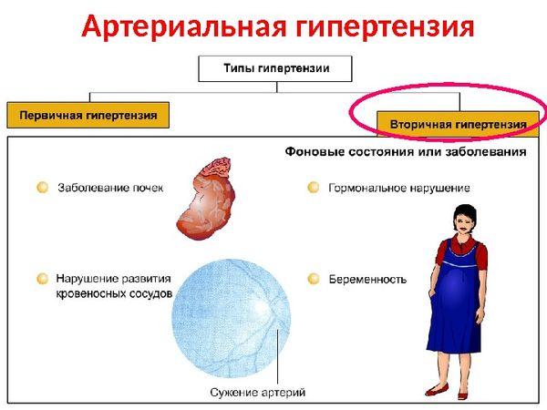 вторичная гипертензия