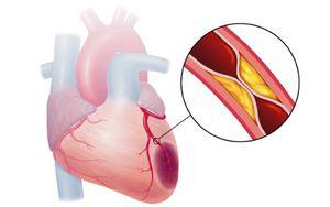 сердце при инфакрте