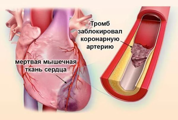 инфаркст миокарда