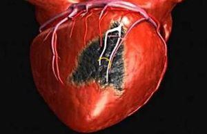 некротическое поражение сердца