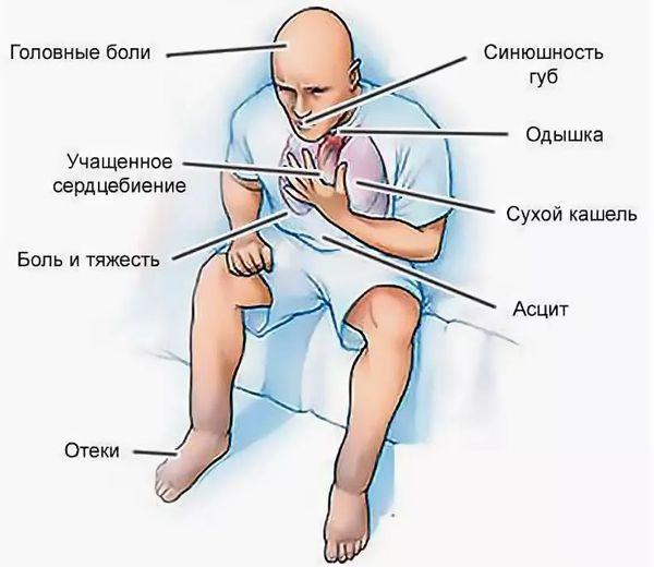 симтомы сн