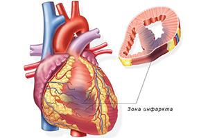 сердце при инфаркте