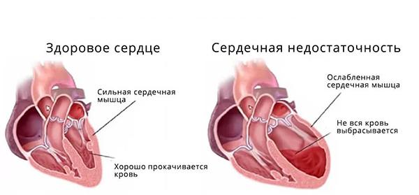 хроническая сердечная недостаточность (