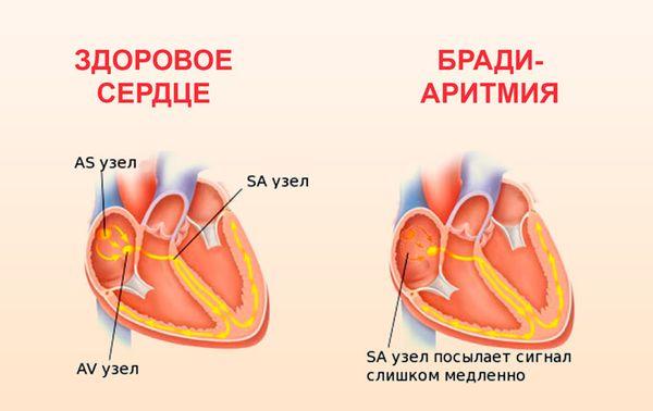 синусовая брадиаритмия сердца