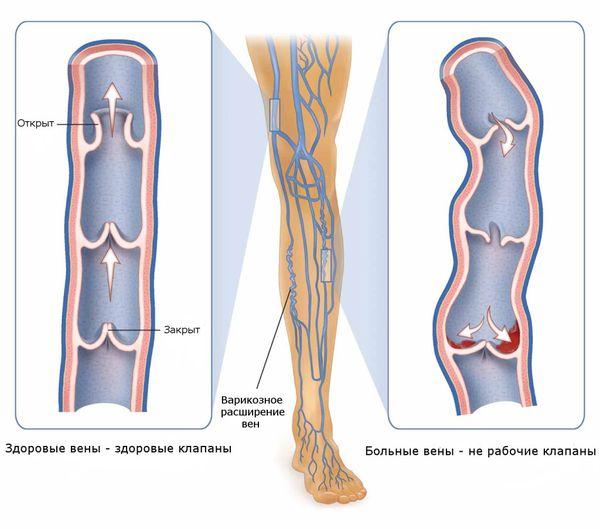 венозное расширение вен