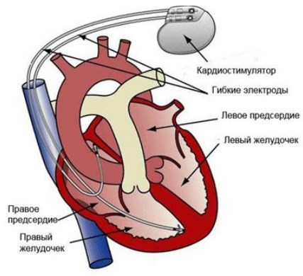 установки кардиостимуляторов схема