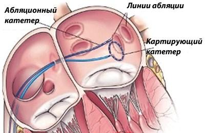 катетерная аблация