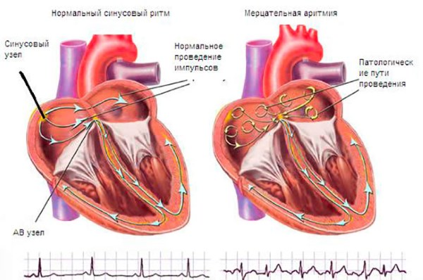 Что значит аритмия сердца