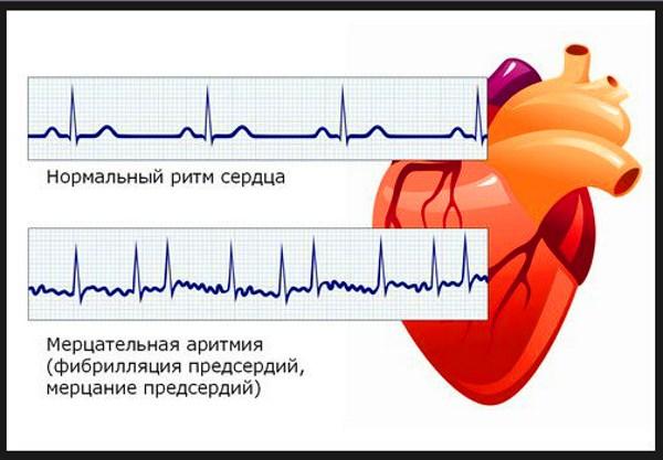 разница в кардиограммах
