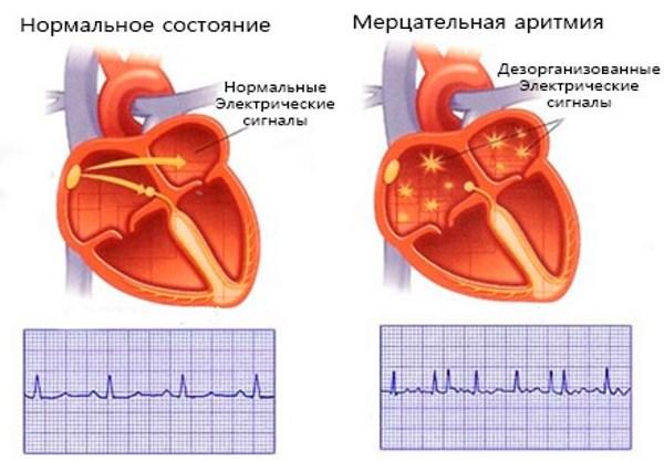 особенность мерцательной аритмии