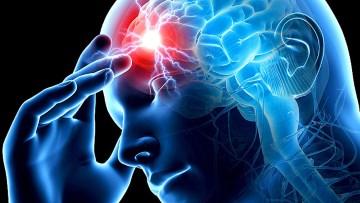 Ишемический инсульт аритмия