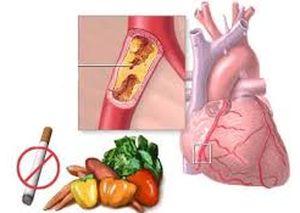 питание при ибс