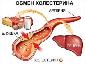 повышенный холестерин
