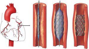 схема ангиопластики и стентирования