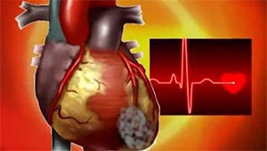 сердце человека
