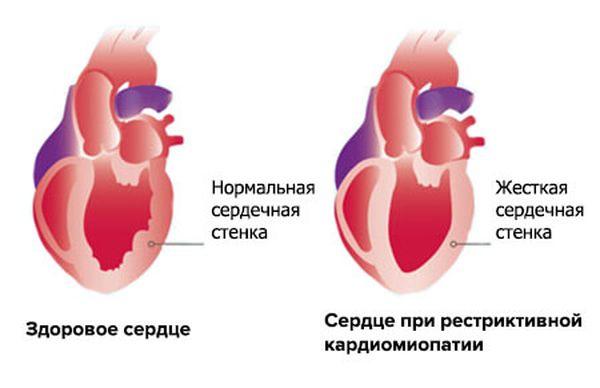 изменения в сердце
