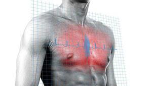 острая боль в области сердца