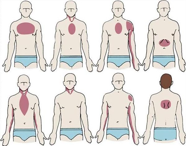 боли при сердечном приступе